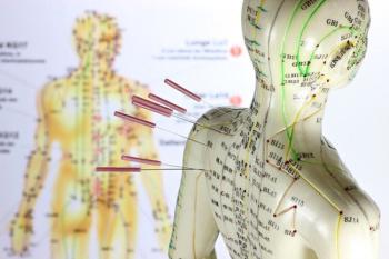 В Стерлитамаке  клиника Гиппократ успешно использует метод лечения - иглоукалывание0